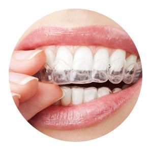 Cheap Dental Implants Sydney Dr Paulo Pinho
